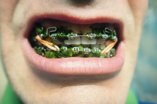 The problem with spinach and braces....